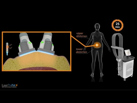 SculpSure: How Non-invasive Fat Reduction Works