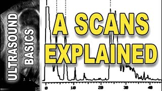 ultrasound - A scans explained
