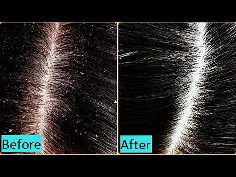 Get rid of dandruff, Hair Fall, dry hair, itchy scalp // get smooth hair in 1 Day!