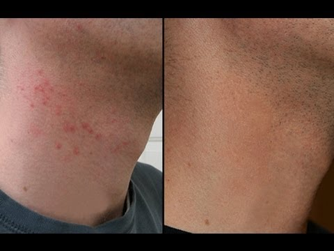 HOW TO CURE RAZOR BURN BUMPS ON NECK & LEGS!