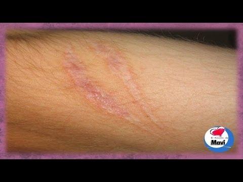 Remedios caseros para quitar o atenuar las cicatrices