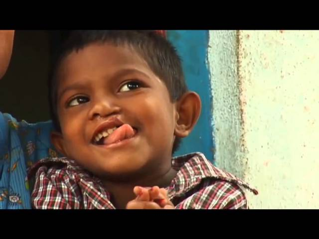 Akshita gets a free surgery done for her cleft lip with the help of CBN Foundation