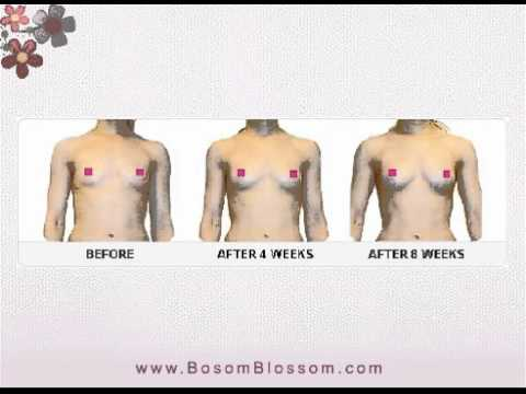 Breast Enhancement Cream - Breast Firming Cream - Breast Enhancement - Bosom Blossom video