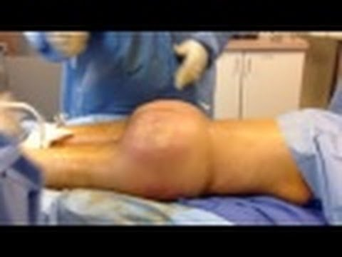 Brazilian Buttlift on 120 lb woman with Dr. Hughes