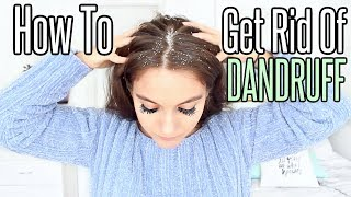 How To Get Rid Of Dandruff PERMANENTLY At Home !