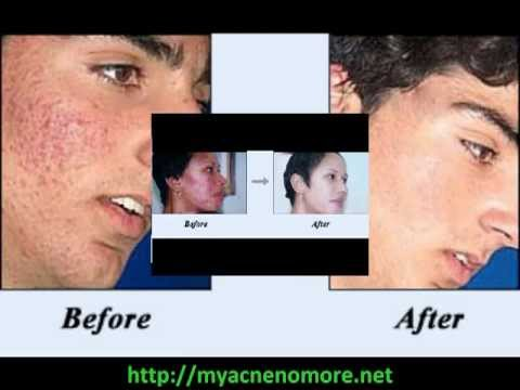 Acne No More Ebook Review Acne No More Ebook Download [Real of Fake]