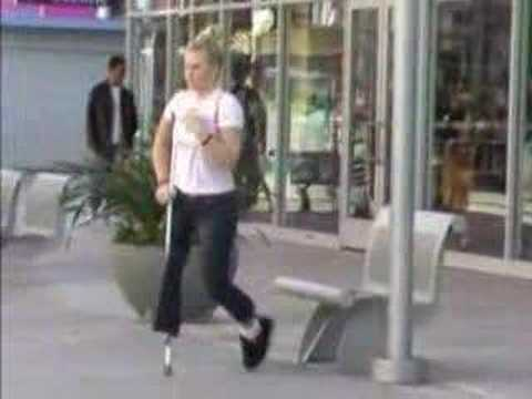 female leg amputee walking with one crutch Video