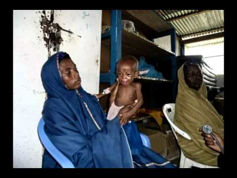 MSF Frontline Reports podcast, Ep. 96 - Inside Somalia: MSF Malnutrition Ward Is