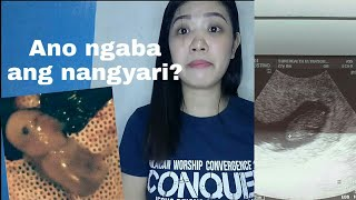 Miscarriage in early pregnancy | Tagalog | Story time