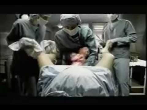 Il parto Video