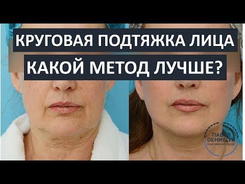 Круговая подтяжка лица: какой метод лучше? | SMAS лифтинг| SPACE лифтинг