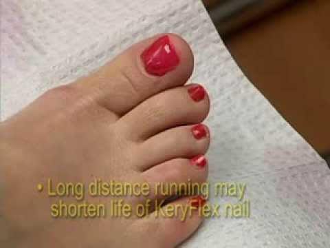 Keryflex Pedicure Covers Fungal Nails
