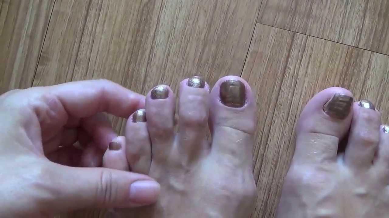 Как починить ноготь на ноге