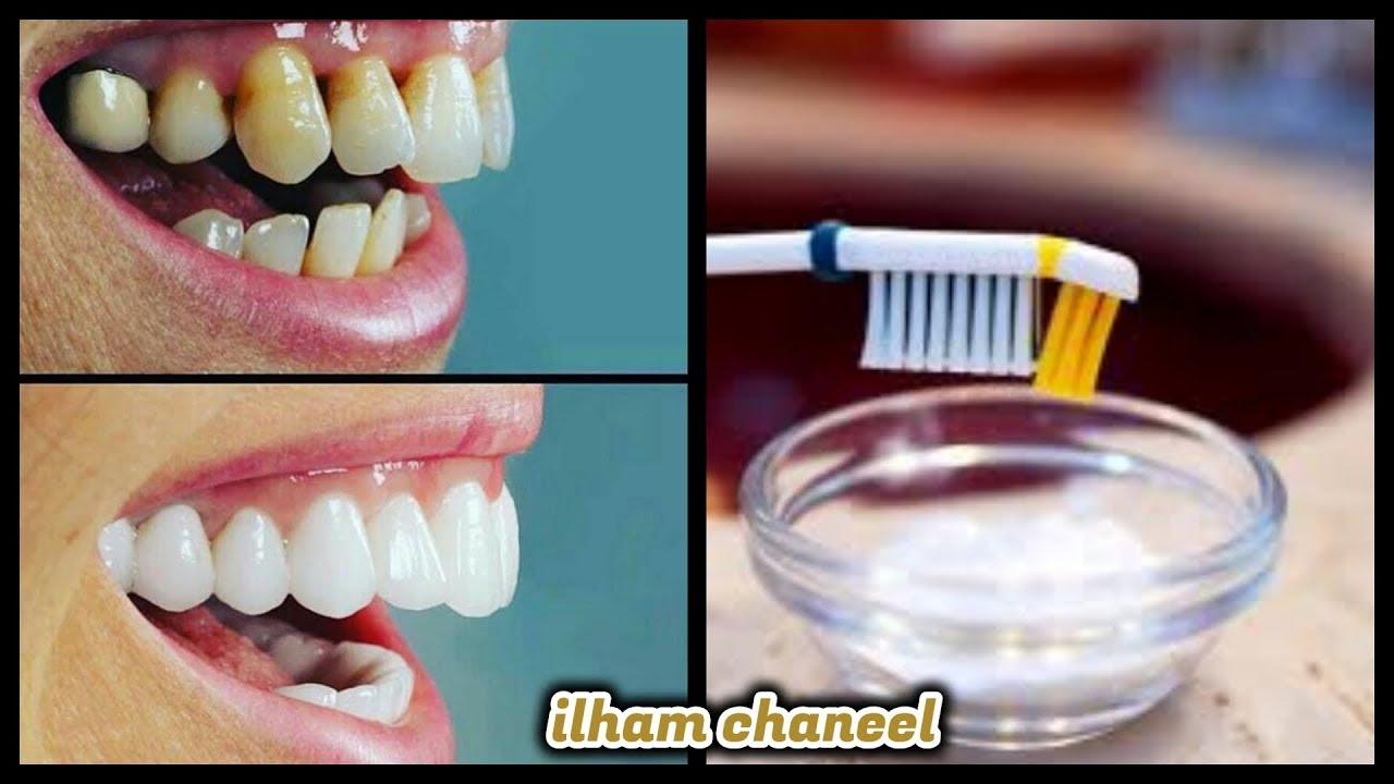 صدق أو لا تصدق تبييض الأسنان في دقيقتين وإزالة الإصفرار من الفركة الأولى وصفة خيااال