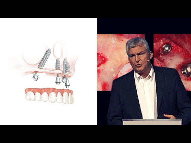 EAO 2013 Nobel Biocare: The evolution of the All-on-4® treatment concept
