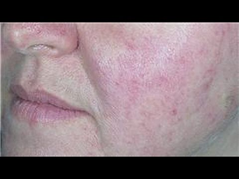 Acne Prone Skin Care : How to Soothe Red Skin