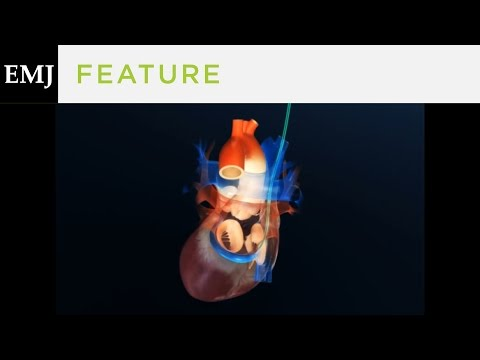 Animation Demonstrating Implantation of the CARILLON Device