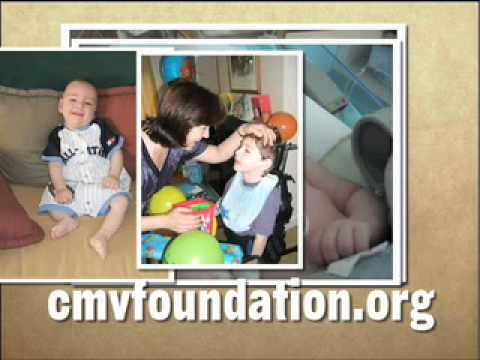 60 Second PSA on CMV, a birth defect virus
