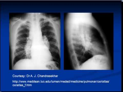 Chest x-ray  --interpretation  -Sarcoidosis