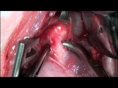 Ductus Arteriosus Ligation Pda Patent Ductus Arteriosus