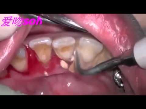 Derin diş taşı temizliği nasıl yapılır?