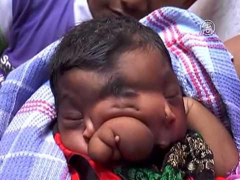 Девочка с хоботом родилась в Индии. Гоночный автомобиль вылете