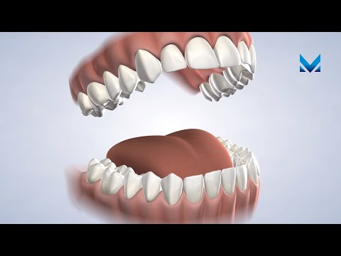 Post-Operative Instructions: General Procedures in Ann Arbor MI | Michigan Oral Surgeons