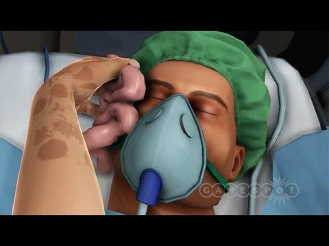 Random Encounter - Surgeon Simulator 2013