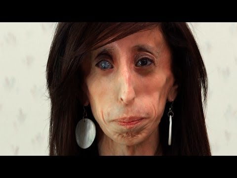 World's Thinnest Woman: Body Bizarre Episode 1