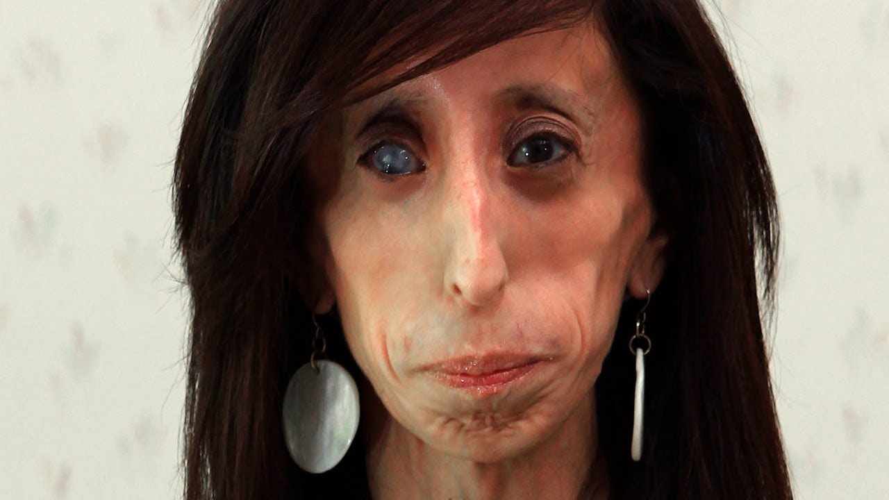 Ugly Woman Face World s Thinnest Woman Body