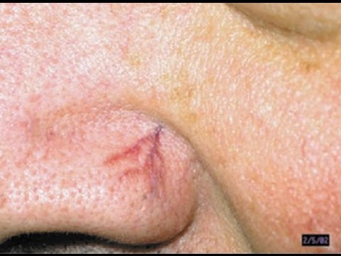 broken capillaries facial