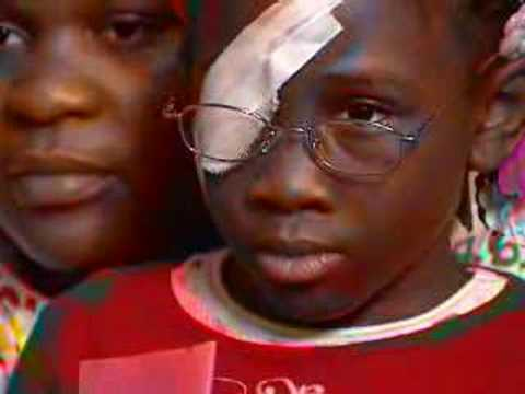 Vicious Attack Leads to Child Losing Eye