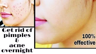 How to Remove Pimples & Acne Overnight | Remove pimple & acne scars & Marks