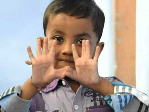 4-year-old boy with 25 fingers