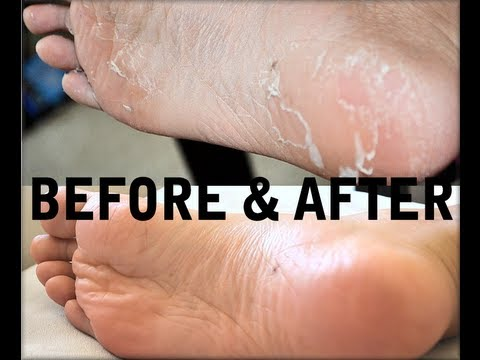 How to Get Rid of Cracked, Dry, Stinky FEET! Baby Foot Review! (Before&After) AprilAthena7