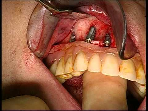 Straumann Bone Level implants surgery in atrophic maxilla