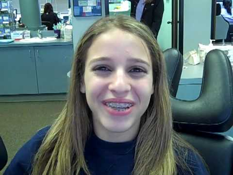 Damon Braces at Bellaire Orthodontics - The Faster Way To A Great Smile!
