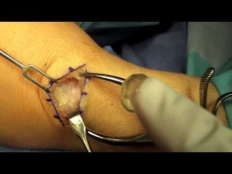Ganglion Cyst - Diagnosis, Draining, and Surgery