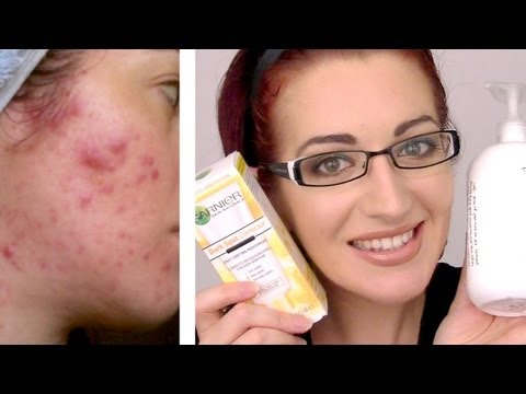UPDATED! 2013 BEST ACNE SKIN CARE ROUTINE! Morning & Night (Acne.Org. Garnier. Exposed)