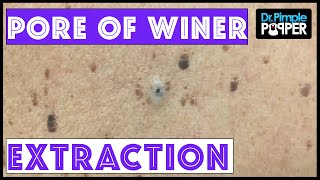 A Sticky Dilated Pore of Winer