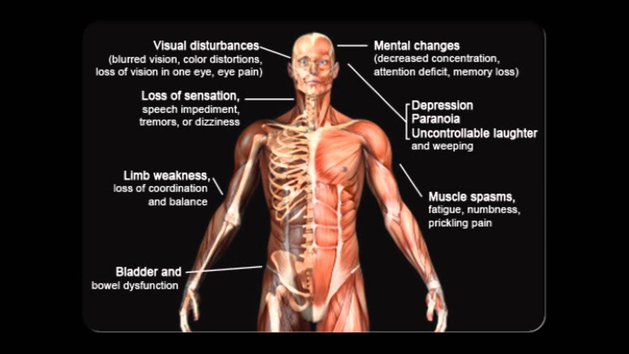 Multiple Sclerosis Symptoms Multiple Sclerosis Awareness