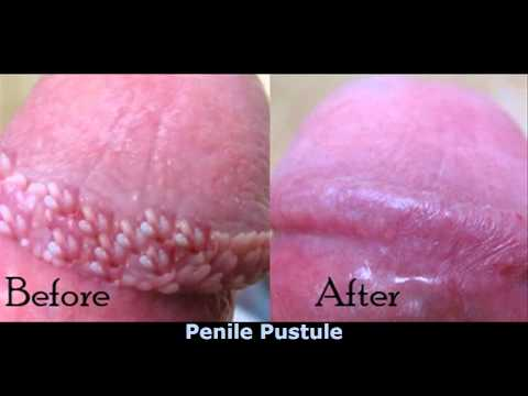 That for small white bumps on the penis