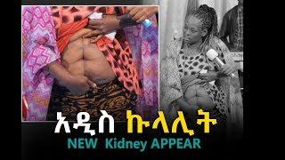 New kidney APPEARED|| AMAZING Testimony