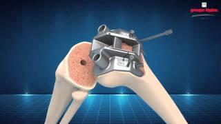 NEW WAVE Surgical Technique 3D Animation