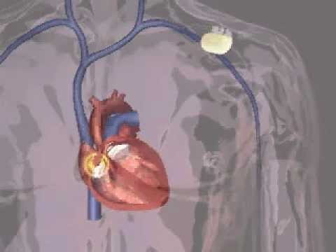 BSC Pacemaker Implant Animation