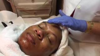 Micro Needling Face Treatment Demo (Miami Beach, Fl) Part 4