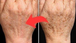 4 Najlepsze Sposoby Na Usuwanie Plam Starczych 👵🏻 - Naturalnie