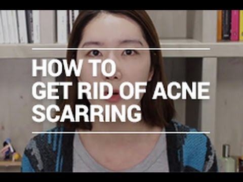 How to Get Rid of Acne Scarring