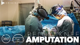 Below Knee Amputation - Dr. Jade Hiramoto