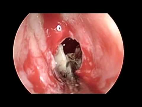 Sphenoid Balloon Sinuplasty